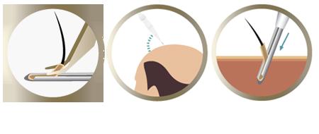 Trasplante capilar con implantación DHI